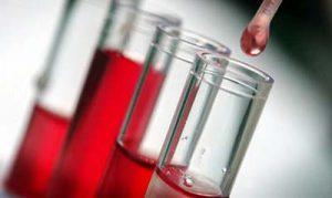 laborparaméter, vér hematokrit