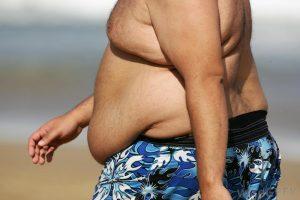 elhízott fürdőruhás férfi